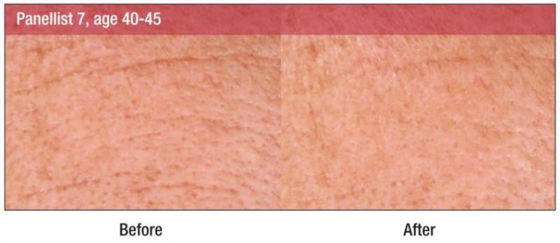 Croda lan�a ativo que promete suavizar a pele instantaneamente